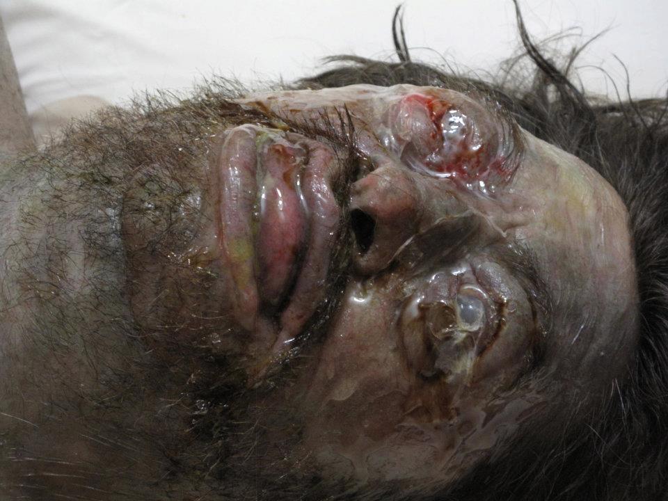 decomposing body  u2013 vincent van dyke effects