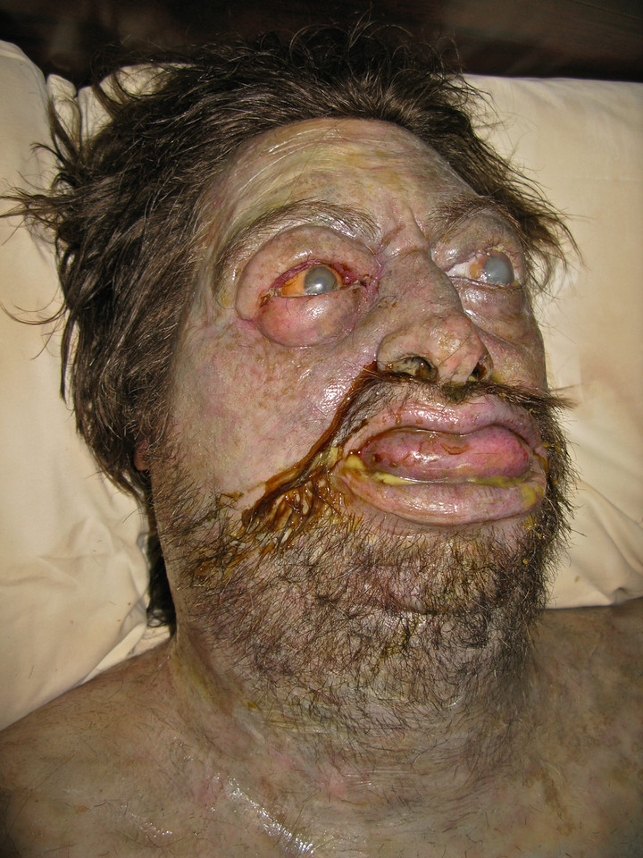 Decomposing Body Vincent Van Dyke Effects