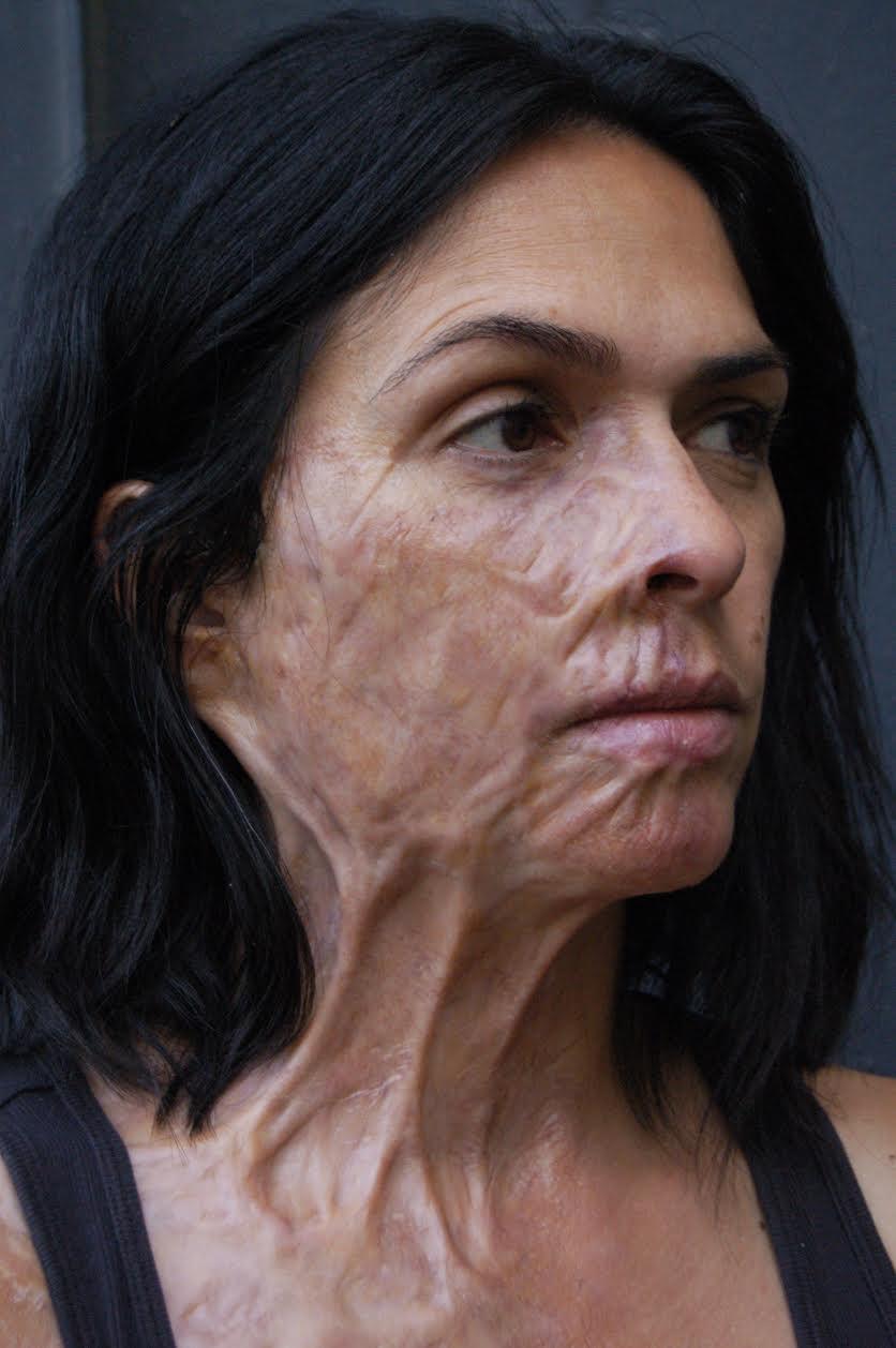 pure genius burn prosthetic  u2013 vincent van dyke effects