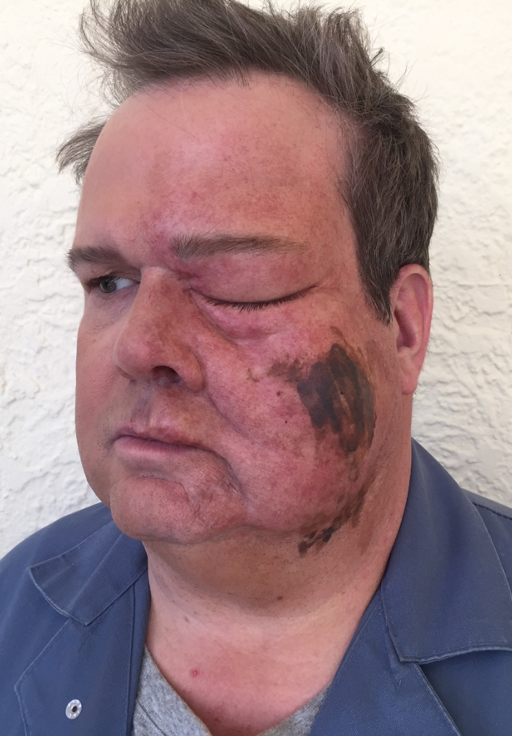 Eric stonestreet wasp sting vincent van dyke effects for Eric stonestreet house